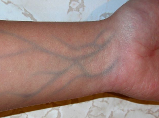 visible blue veins in arms